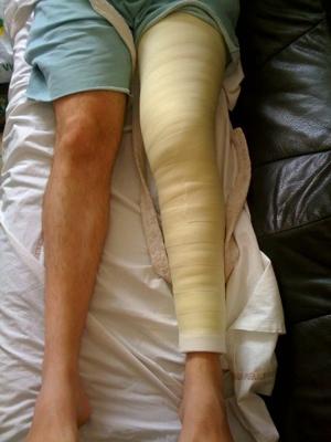 Platr maj7 mattt 39 s blog v2 - Demangeaisons jambes apres douche ...